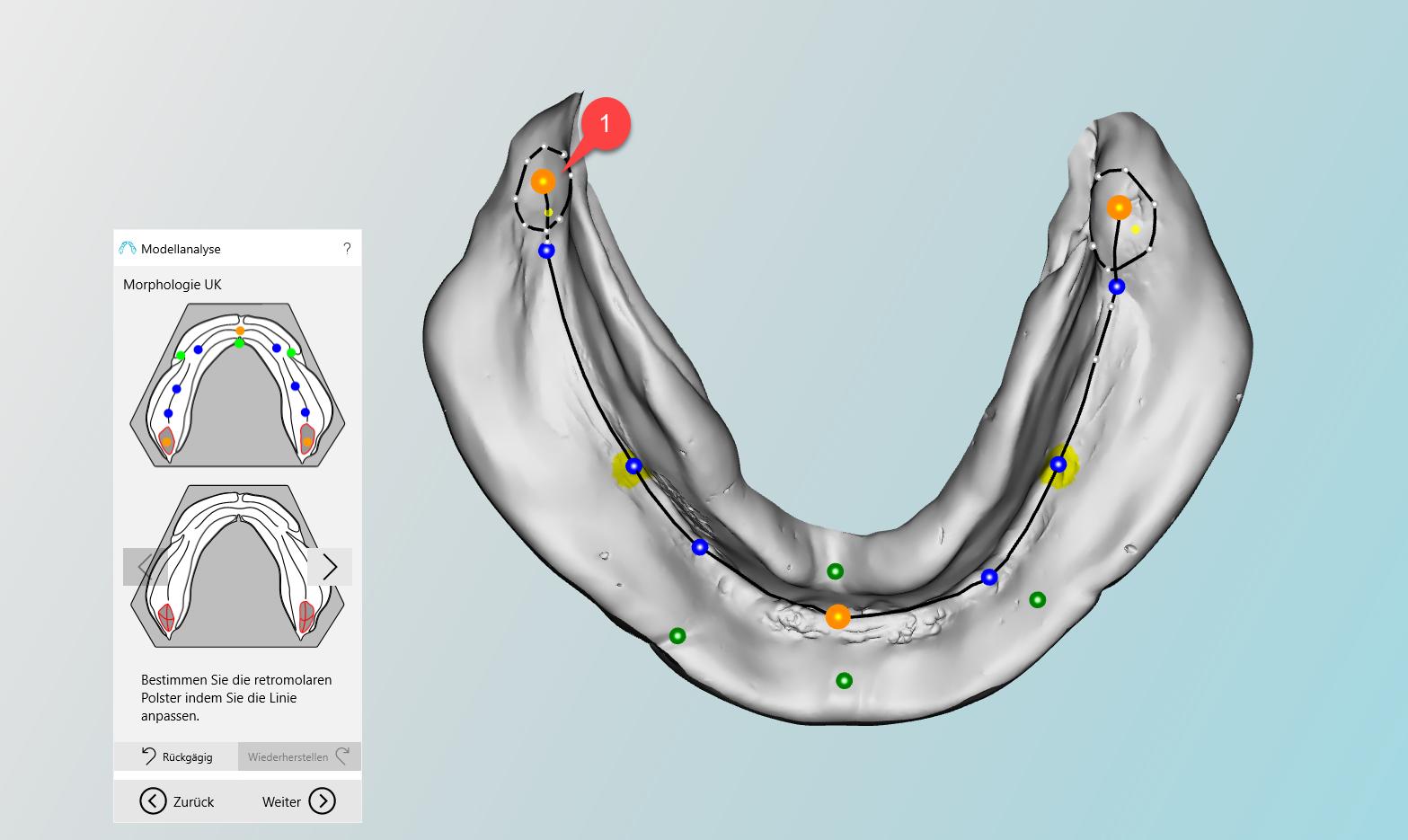 Anatomische Markierungen am Unterkiefer | BD Creator Help System
