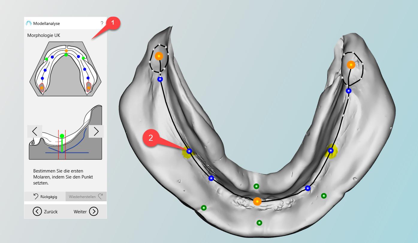 Anatomische Markierungen am Unterkiefer   BD Creator Help System
